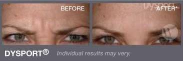 hemac-aesthetic-skin-anti-wrinkle1