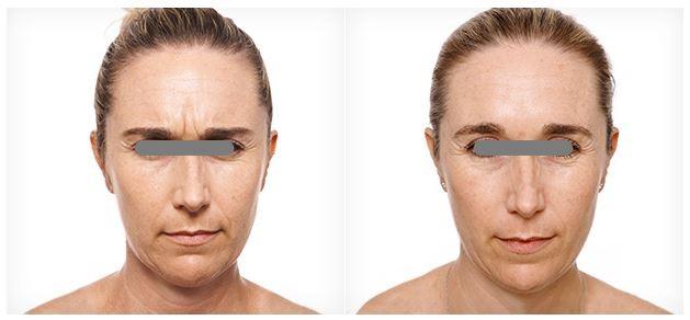 hemac-aesthetic-skin-anti-wrinkle2