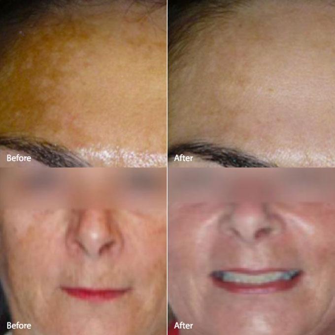 hemac-aesthetic-skin-melasma