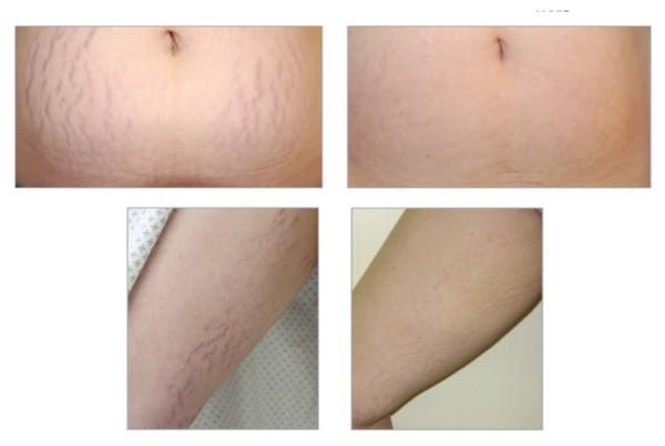 hemac-aesthetic-skin-stretch-mark